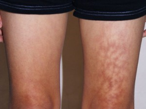 mottled-skin-syndrome_370x278