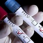 Прв пат по 19 години научниците открија нов тип вирус на ХИВ