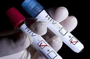 hiv sida
