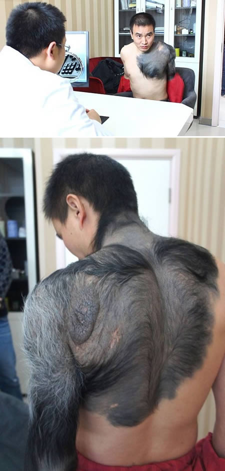 a98421_birthmark_1-zhang