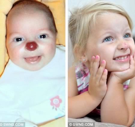 a98421_birthmark_2-red-nose