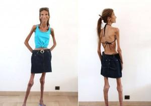 anoreksija5