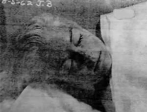 2-marilyn-monroe-autopsy-photos