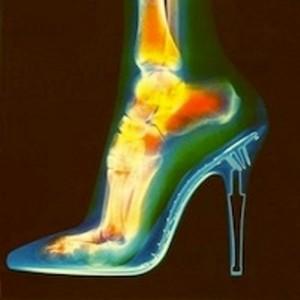 high-heels-xray