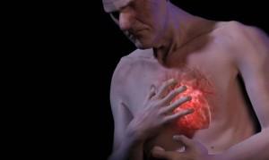 srcev-udar infarkt
