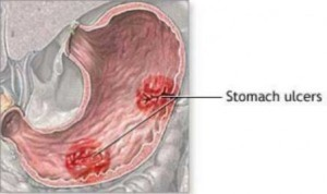 gastric-stomach-ulcers-345200-300x178