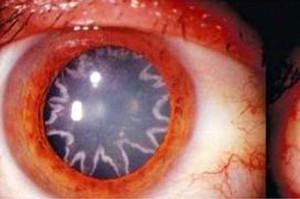 eyesstar