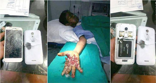 mobilen-povredi