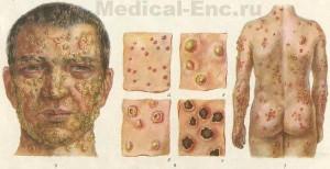 sipanici variola vera