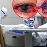 Едно лице хоспитализирано, можна појава на ебола во Шведска