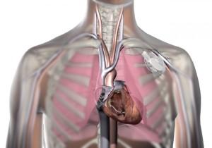pacemakerinchest-600x420