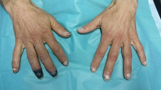 smrznati prsti
