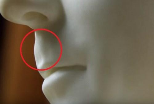 lice dupka