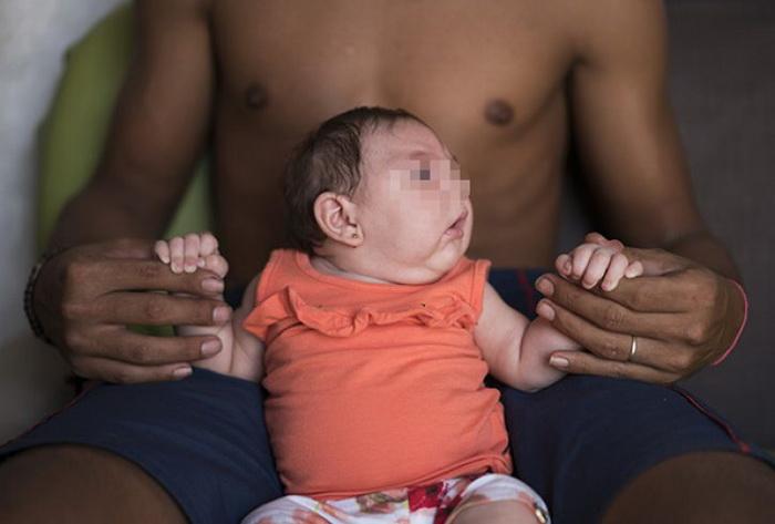 zika-virus-opasnost-bebinja-01