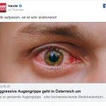 Епидемија на агресивен очен грип во Австрија: Заразната инфекција брзо се шири
