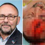 Германски политичар претепан речиси до смрт: Маскирани напаѓачи го удирале до бесвест и полумртов го оставиле